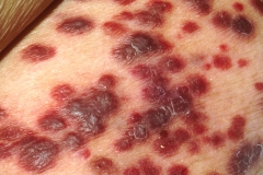 red Anal skin tags