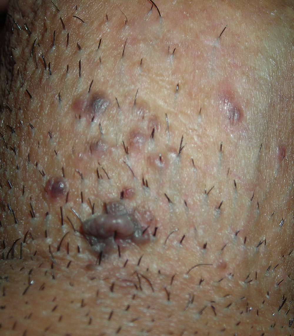 a3ff958dc92d Ingrown hair on penis and penile shaft  Treatment and pictures 2017
