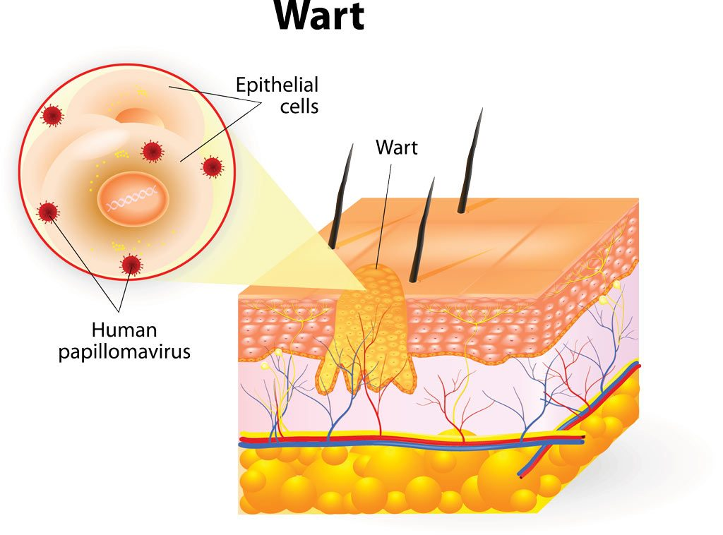 Causes and symptoms of warts
