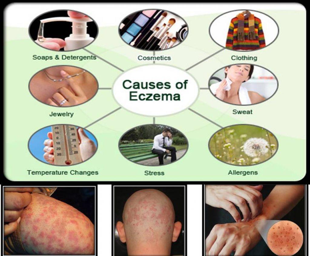 causes of eсzema