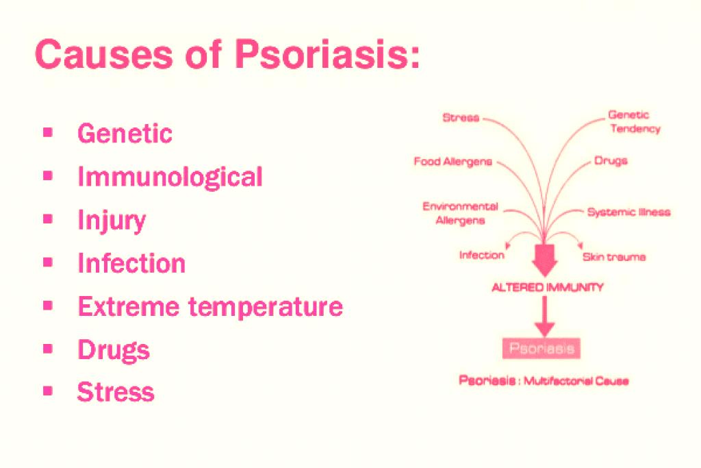 psoriasis-causes