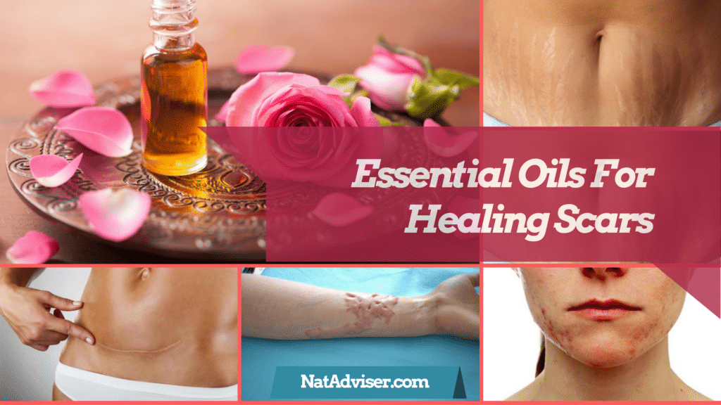 9 Best Essential Oils For Scars And Recipes for Surgical