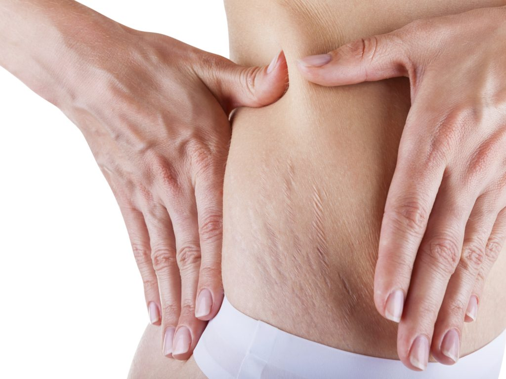 Copaiba essential oil for Scars and stretch marks