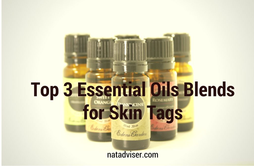 Top 3 Essential Oils Blends for Skin Tags