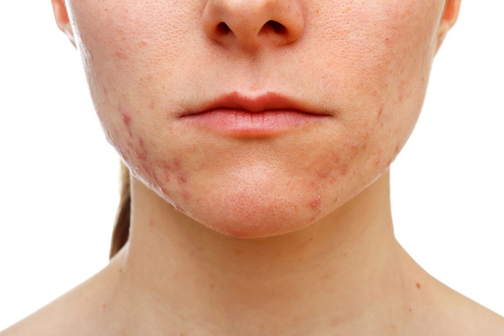 Copaiba essential oil for Acne and psoriasis