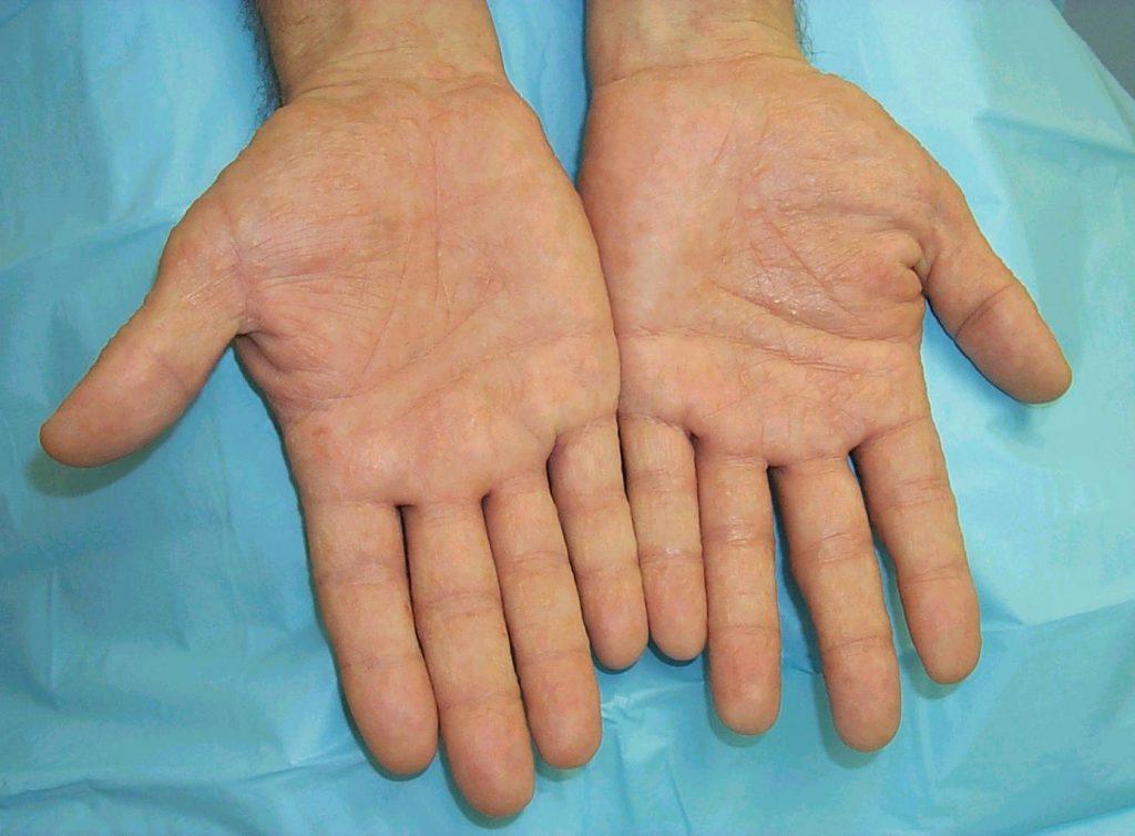 is eczema contagious - Dyshidrotic eczema