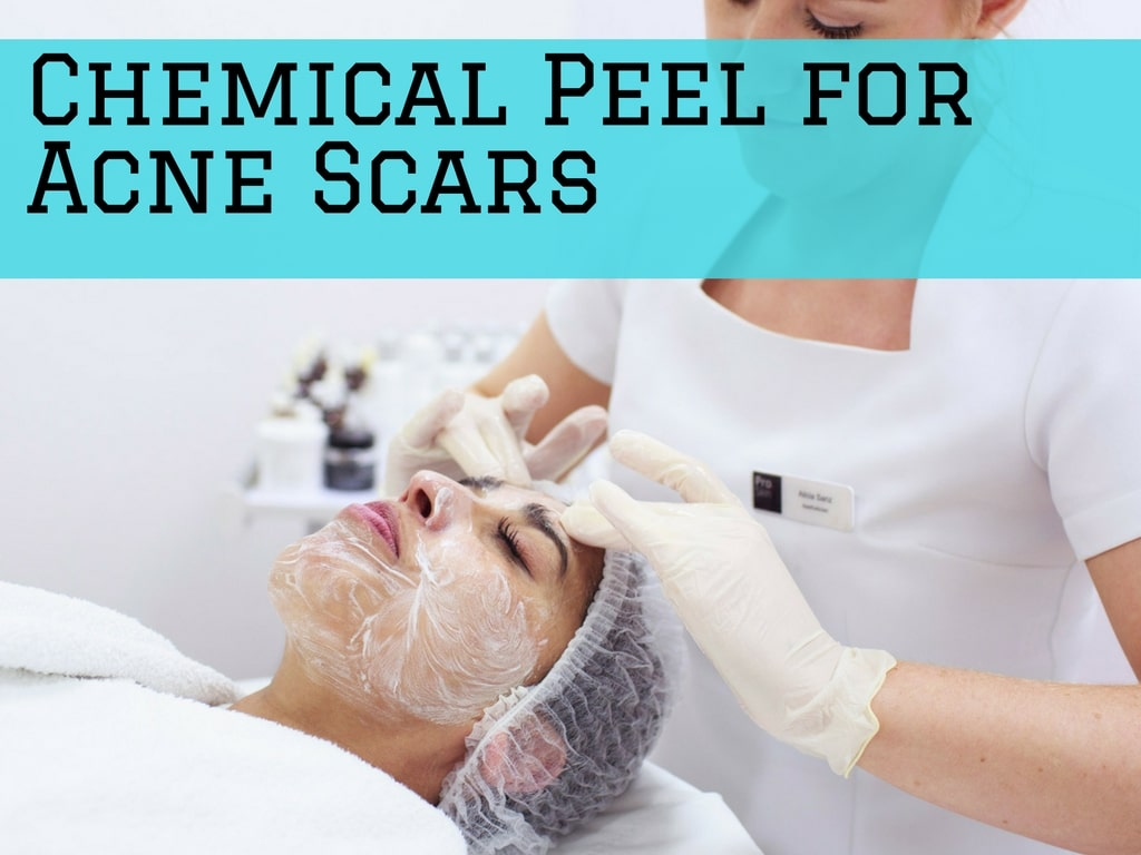 Chemical Peel for Acne Scars