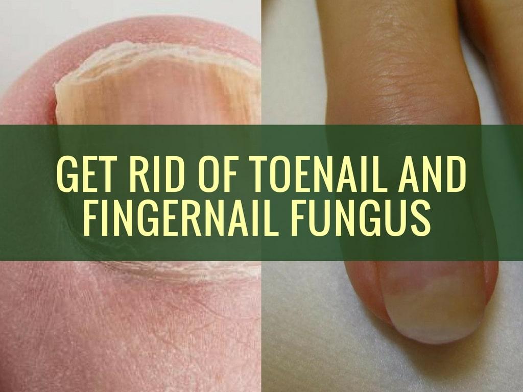 Get Rid of Toenail and Fingernail Fungus