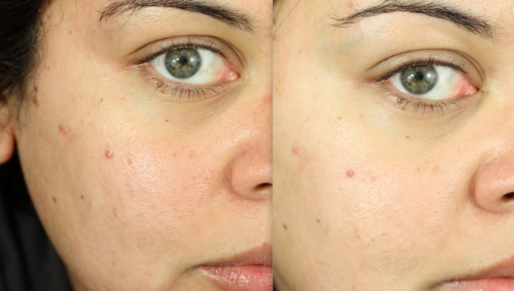 acne peel before and after