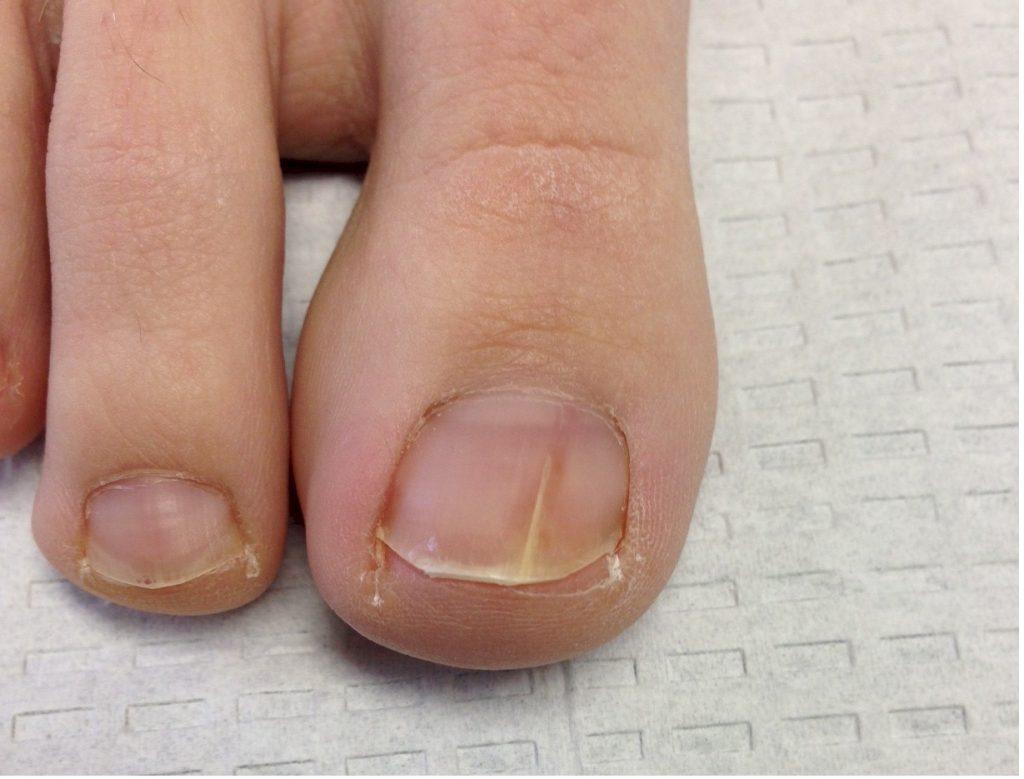 toenail fungus contagious