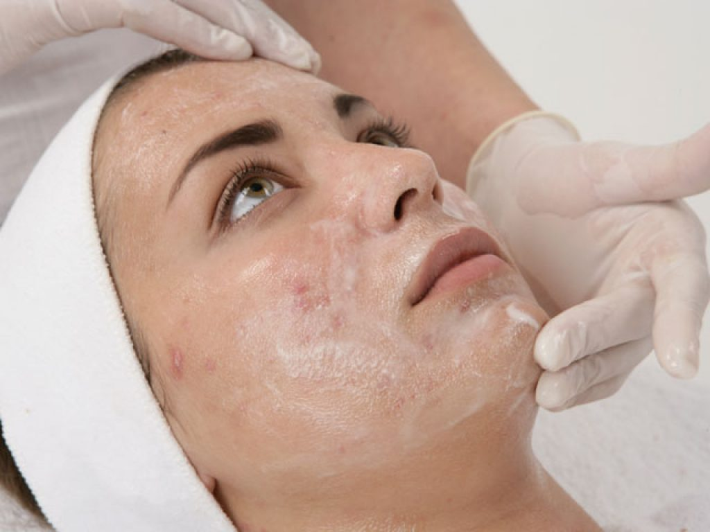 Glycolic Acid Peel for acne scars