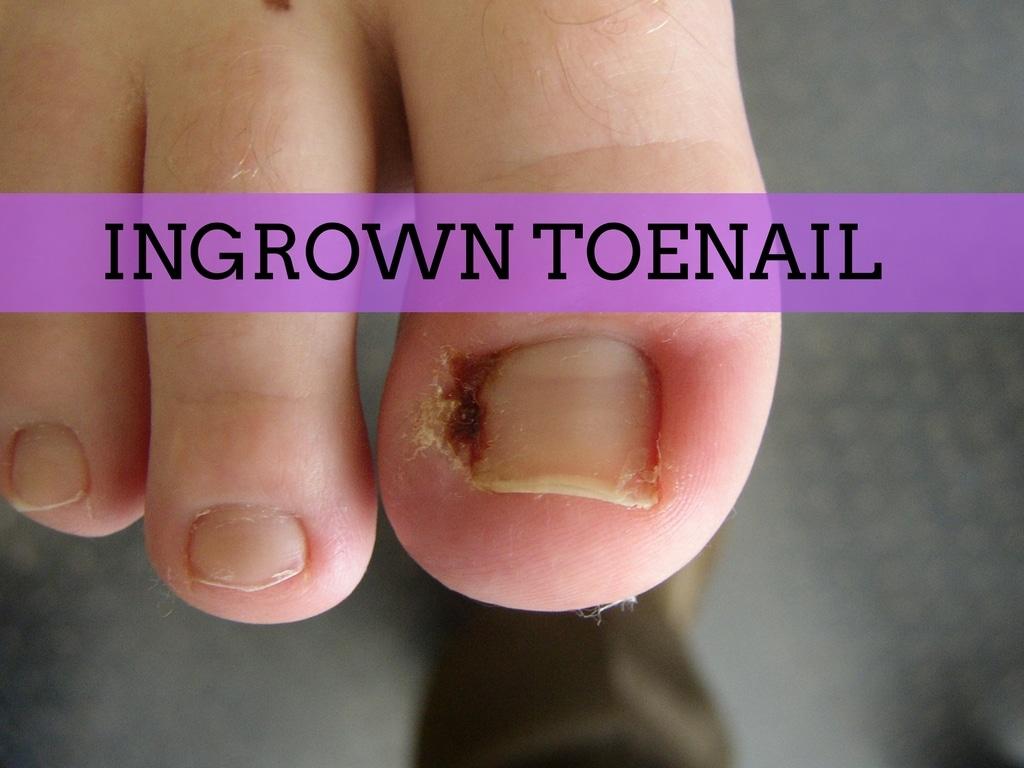 How to Get Rid of an Ingrown Toenail
