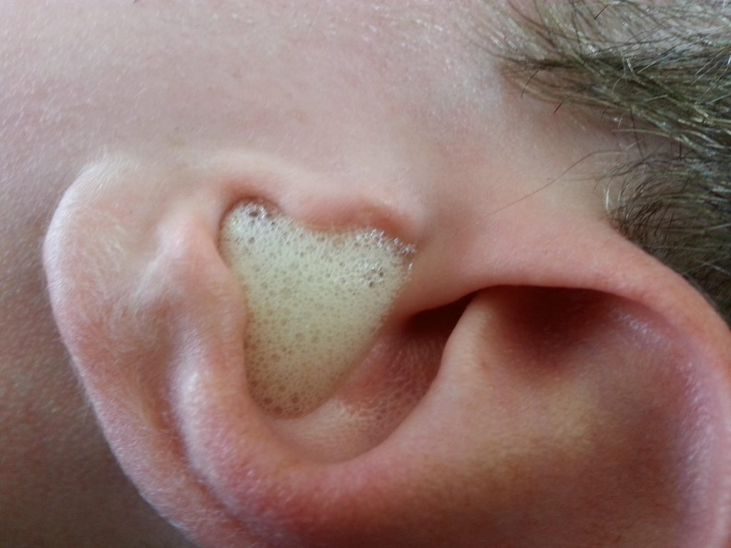Hydrogen Peroxide for ear wax removal at home