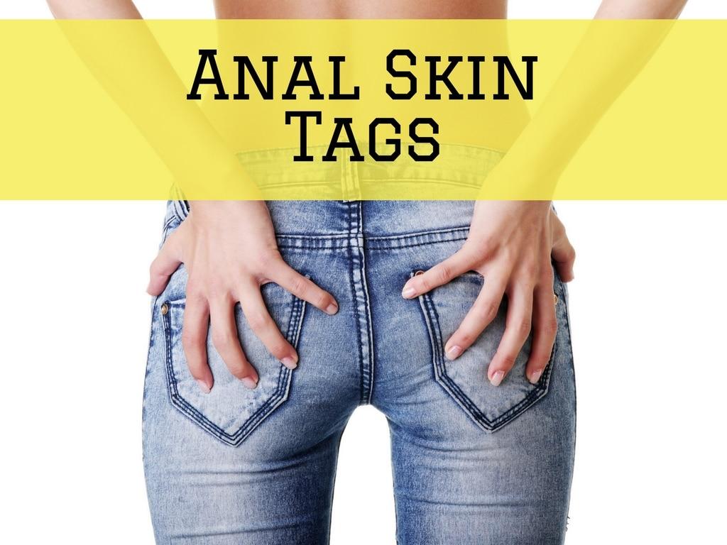 Anal Skin Tags