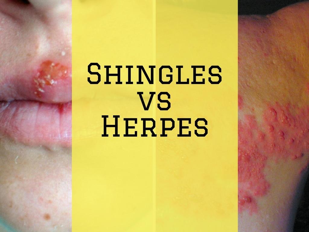 Shingles vs Herpes