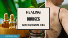 Best Essential Oils to Treat Bruises and Swelling