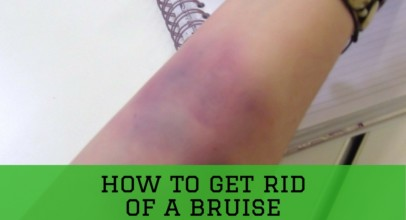 How to Get Rid of A Bruise Quickly With Reliable Treatment?