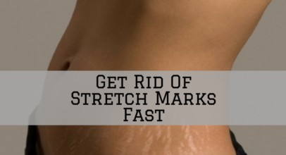 Get Rid Of Stretch Marks Fast Naturally with Homemade Recipes