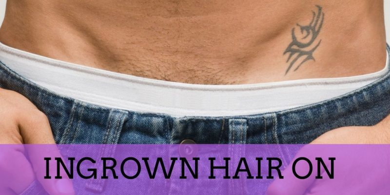 Ingrown Hair on Penis: Facts on Ingrown Hairs & How to Remove Them