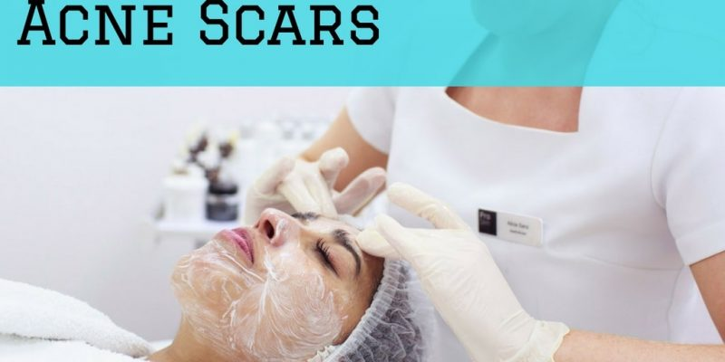 Best Chemical Peel for Acne Scars, Overview, Results and Precautions