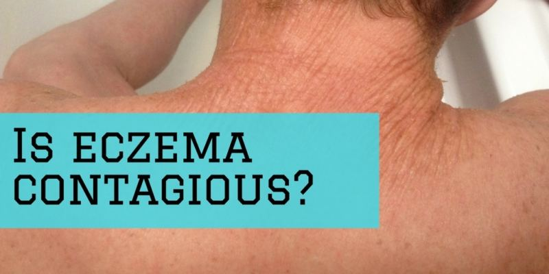 Is eczema contagious? Demystifying eczema