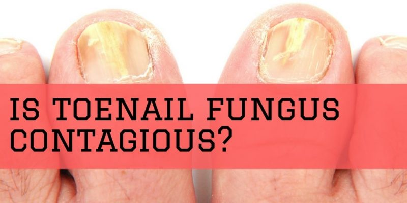 How Contagious Is Toenail Fungus and What Causes It