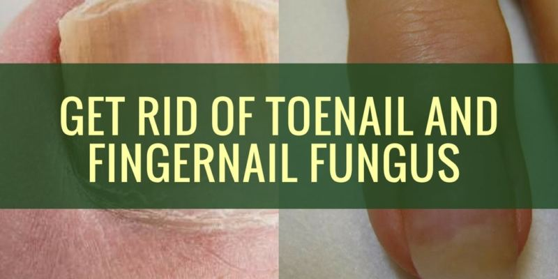 Get Rid of Toenail and Fingernail Fungus fast with Natural Remedies