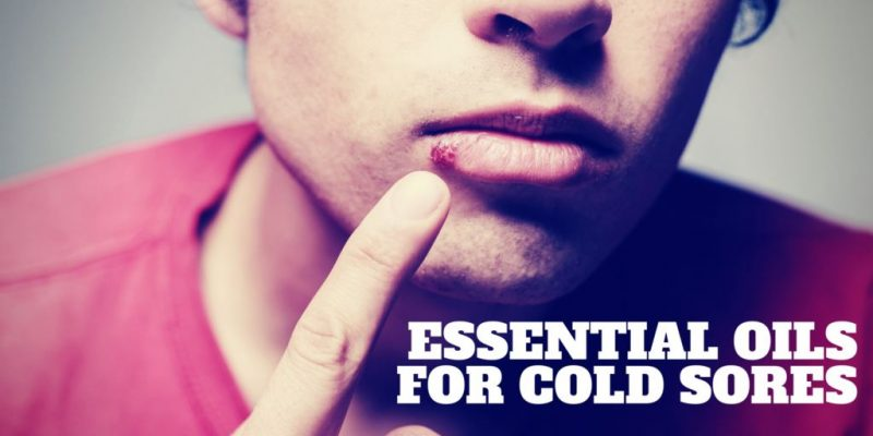 7 Essential Oils For Cold Sores That Will Help You Achive A Beautiful Smile