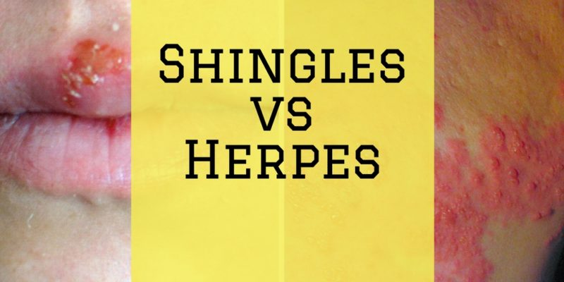 Shingles vs Herpes: How are They Different from One Another?