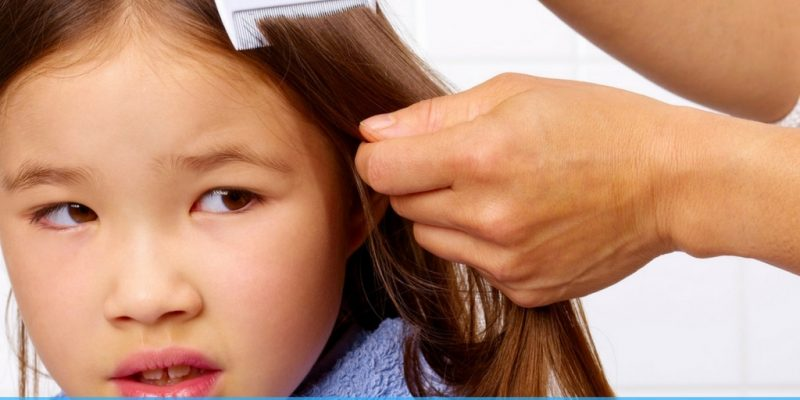 How To Get Rid of Lice: 10 Natural Methods for Lice Treatment
