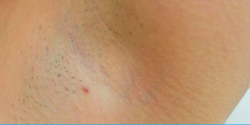 Best Remedies and Tips to Get Rid of Razor Bumps