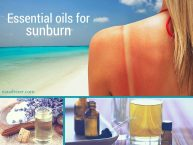 5 Essential Oils For Sunburn That Will Help You Regenerate Your Skin